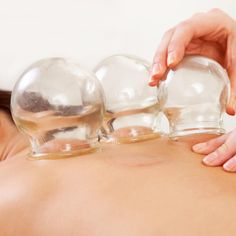 Cupping Therapy: Alternative Medicine for Pain, Immunity