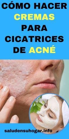 Cómo hacer cremas para cicatrices de acné   saludensuhogar.info Beauty Hacks, Beauty Tips, Food, Casual, Facial Aesthetics, Frases, Health And Beauty, Beauty Tricks, Beauty Dupes