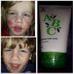 Arbonne ABC baby care range. Pure, natural, botanical products that really work. These before and after photos are after using the abc nappy cream for one week on severely sore chapped skin To order visit www.charlottekirk.arbonneinternational.co.uk