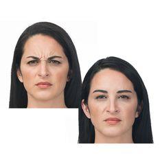 10 Best Sculptra images | Cher plastic surgery, Plastic Surgery, Burns