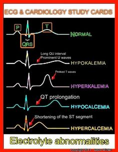 """ EKG changes with electrolyte abnormalities. """