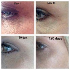 Great results with Nerium :) Get some great results for yourself! www.scordova.nerium.com