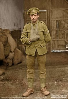 World War One. A soldier (possibly of the Leeds Rifles) with an injured hand. Courtesy of Ross Coulthart, author of 'The Lost Tommies' & The Kerry Stokes Collection-Louis &Antoinette Thuillier.