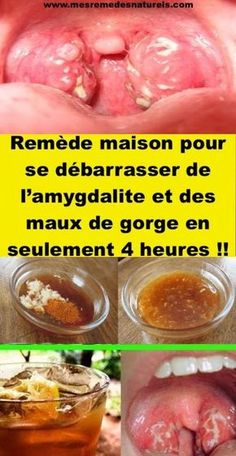Cet ancien remède vous permet de vous débarrasser des maux de la gorge et de l'amygdalite en 4 heures seulement ! RECETTE. Sante Bio, Healthy Tips, Natural Health, Detox, Health Fitness, Good Things, Fruit, Food, Danger