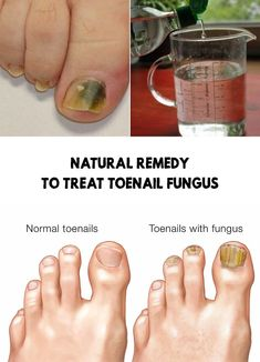 Fungal nail infections should be treated as soon as we detect them. In today's article, we present a natural remedy for toenail fungus. Black Toenail Fungus, Vicks For Toenail Fungus, Treating Toenail Fungus, Toenail Removal, Fungus Toenails, Toe Fungus Remedies, Cold Remedies, Black Nails, Hacks