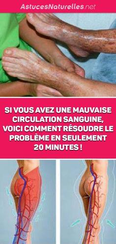 Vous aviez les pieds enflés ou encore les mains froides ? On vous dira très certainement que vous avez une mauvaise circulation sanguine. Mais, quelles sont les véritables symptômes de ce trouble et comment vous pouvez y mettre fin. Nous vous apportons toutes les réponses qu'il vous faut dans la suite de cet article.