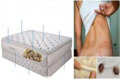 A matracodban élő baktériumok számos betegséget okozhatnak. Tudtad