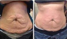 Dit is het resultaat na 8 wraps. Word loyal customer en bespaar tot wel 50% op de wraps. Normaal 4 wraps = €110, loyal customers betalen ca. €60 www.bodywrapsnederland.nl/loyal-customer