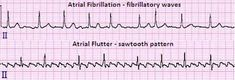 atrial fibrillation and atrial flutter Atrial Flutter, Cardiothoracic Surgery, Heart Valves, Atrial Fibrillation, Nursing School Tips, School Health, Cardiology, Nclex