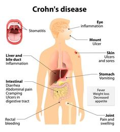 De ziekte van Crohn is met traditionele behandelingen ongeneeslijk en moeilijk met reguliere medicijnen te onderdrukken. Medicinale cannabis brengt echter in veel gevallen de kwaal volledig in remissie.