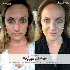 "What are freckles?? It's your skin reacting to UV-B rays, activating melanocytes to increase melanin production. Fellow consultant Melissa W. shares her story + results! ""I've had freckles my entire life, and have always been told they are ""so cute"". What few people realize is that freckles are actually sun damage! So in an effort to preserve *some* of my cuteness are used to Redefine daily and Reverse + the Amp MD roller once a week. I didn't think I had ""bad"" skin before, but it is amazing…"