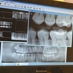 At the dentist and man my teeth are an mess.