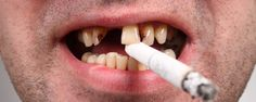 Smoking and tooth loss is real. Do you want to keep your natural teeth for your whole life? Of course you do, since dentures can be uncomfortable and implants take time and money. Luckily, by brushing, flossing, using mouthwash and regularly visiting the best Manhattan dentist, you can keep your...