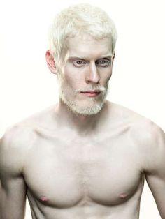 Handsome albino model Stephen Thompson rocking a beard.