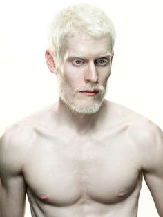 THE BEAUTY OF BEING AN ALBINO—YES WE ARE HUMANS TOO