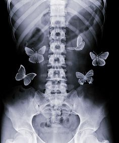 i have butterflies in my stomach all the time