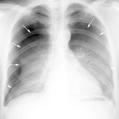 Pneumothorax Nursing Cheat Sheet, Nuclear Medicine, Respiratory Therapy, Lunge, Medical Imaging, Emergency Medicine, Science Biology, Medical Information, Nurse Life