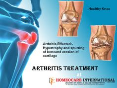 Common symptoms of   Rheumatoid Arthritis are fever, anemia, joint pain with redness and swelling. To cure Arthritis permanently Homeopathy Treatment is the best option. Homeopathic Medicines will not cure only disease it will cure whole person. Homeocare International provides best homeopathy treatment.   Visit Us At:- http://www.homeocare.in/arthritis.html  Contact Us:- 1800-108-212
