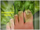Smelly Feet MS Word Template is one of the best MS Word Templates by EditableTemplates.com. #EditableTemplates #Medical #Horrible Smell #Foot Hygiene #Body Odor #Rotten Smell #Orthopedics #Podiatric Medicine #Smell #Health Care #Bacterial Infection #Toe Nails #Feet Odor #Feet Care #Podiatry #Stink #Foot Smell #Smelly Feet #Cheese Smell #Foot Fungus #Human Foot #Odor #Feet Stink #Athletes