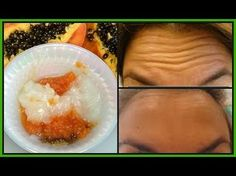 How to Get Rid of Forehead Wrinkles, Look Ten Years Younger With Out Botox, Surgery Or Pain Under Eye Mask, Under Eye Wrinkles, Prevent Wrinkles, Wrinkle Remedies, Home Remedies For Acne, Face Massage, How To Get Rid, Healthy Skin, Youtube