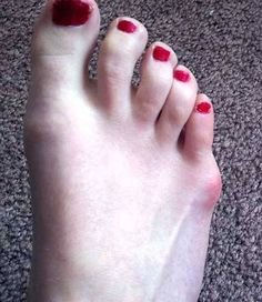 This is called a tailor's bunion. Learn more about how it's treated. Bunion Exercises, Bunion Relief, Pain Relief, Tailors Bunion, Bunion Remedies, Bunion Pads, Gel Toes, Hammer Toe, Healthy Nails