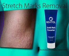 Stretch Mark Scars