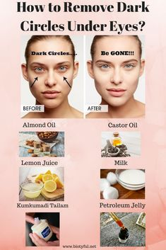 There are many products out there which guarantee amazing results to people dealing with dark circles. Some work as well but not everyone is able to afford that. This is when these home remedies to remove dark circles under eyes becomes significant. Dark Circles Makeup, Dark Circles Under Eyes, Clear Skin Face, Face Skin Care, Good Skin Tips, Skin Care Tips, Natural Beauty Tips, Natural Skin Care, Dark Circle Cream