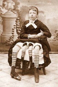 "Myrtle Corbin, the Four-Legged Woman | 16 Real Life Side Show Workers That Probably Inspired ""American Horror Story: Freak Show"""