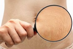 9 Effective Natural Home Remedies To Remove Stretch Marks White Stretch Marks, Oil For Stretch Marks, Wrinkle Remedies, Cellulite Remedies, Best Stretch Mark Removal, Beauty Hacks That Actually Work, Coconut Oil Body Scrub, Stretch Mark Remedies, Receding Gums