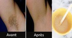 Comme toute autre partie de votre corps, les aisselles nécessitent une hygiène régulière. Cette zone est source de nombreux désagréments tels que les poils, les odeurs indésirables et la transpiration excessive. Voici des astuces pour se débarrasser des poils des aisselles naturellement !