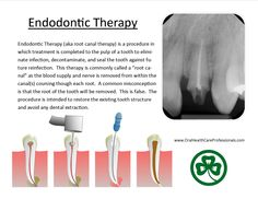 "#Endodontic Therapy (aka #root #canal therapy) is a procedure in which treatment is completed to the #pulp of a tooth to eliminate #infection, decontaminate, and seal the tooth against future reinfection.  This therapy is commonly called a ""root canal"" as the blood supply and nerve is removed from within the canal(s) coursing though each root.  A common misconception is that the root of the tooth will be removed.  This is incorrect and does not occur."