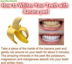 How to whiten your teeth with banana peel.