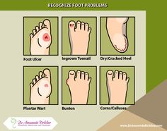 How do your feet look? Can you recognize these common #foot problems? #ulcer #wart #dryskin