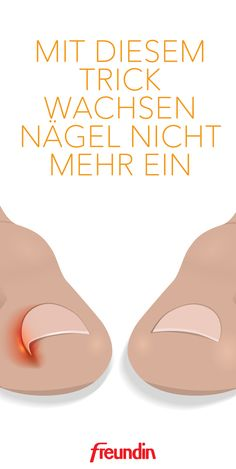 Mit diesem Trick wachsen Nägel nicht mehr ein Ingrown nails are painful and uncomfortable. If you want to prevent them, you should consider this one thing when cutting und Schönheit Diy Beauty Organizer, Younique, Ingrown Nail, Healthy Nails, Hair Health, Tutorial, Hair Hacks, You Nailed It, Essie