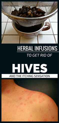 Herbal Infusions To Get Rid Of Hives And The Itching Sensation