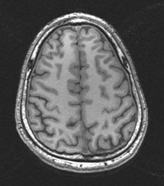 Another section from the T1 brain MRI. Click through to image32.com to see the whole study in our FREE interactive web viewer.
