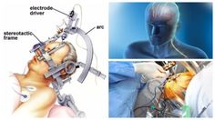 Frequently Asked Questions – Deep Brain Stimulation Surgery #FAQ #dbs