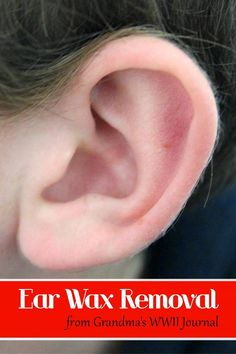 "I think leaving ear wax IN the ear is best most of the time.  But if you have a pesky ""too much wax"" problem, here is your natural & frugal solution!"