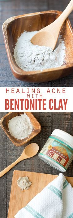 I've switched to an all natural skincare routine, which has allowed me to heal acne with bentonite clay. Here's how I use it, and how it's made a world of a difference in my skin! :: DontWastetheCrumbs.com