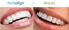 Seriously, braces?? Why bother? Invisalign are the way to go!