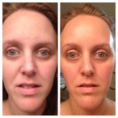 Bulging Eyes, It Works Products, Eye Cream, Facial, Lips, Facial Treatment, Facial Care, Eye Creams, Face Care