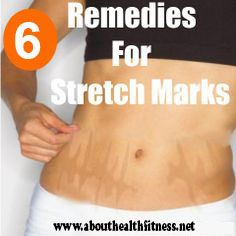 Stretch marks are visible lines on the skin surface, with an off-color hue. These are quite common in both genders in their life. In women stretch marks are very common during pregnancy time. Sudden growth of body, puberty period stretch marks will appear. They are some tips that, How to get rid of Stretch Marks home remedies.  Not mentioned in the article is that sufficient zinc will prevent stretch marks by keeping your skin more elastic.