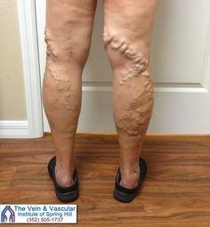 Varicose veins affect over 24 million people in the United States alone. If you are suffering from varicose veins, it's important to realize that varicose veins are a serious medical condition that only get worse with time.  Learn more at: https://www.veinandvascularofspringhill.com/service/varicose-vein-treatment/  #VaricoseVeinsTreatmentSpringHill #SpringHillEndovenousAblation #VaricoseVeinRemovalSpringHill