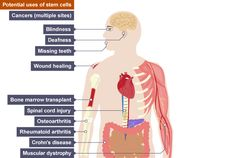 Stem cells could potentially be used to treat illnesses such as cancers, blindess, deafness, missing teeth, wound healing, bone marrow transplant, spinal chord injury, osteoarthritis, rheumatoid arthritis, Crohn's disease and muscular dystrophy.
