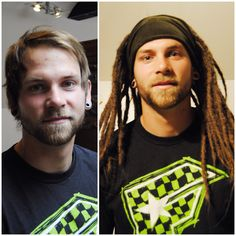 Bernt befre and after dreads