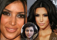 now, the nose does look different here.. ?  Kim-Kardashian-before-nose-surgery-chemical-peels-botox