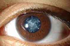 Atasi Mata Katarak Secara Alami >> Mata sebagai panca indera penglihatan manusia mempunyai fungsi yang penting sekali bagi manusia. Demikian pula dengan gangguan dan penyakit yang menyerang mata kita. Penyakit katarak sangat berbahaya bagi kita. Bagi Anda yang mempunyai penyakit mata katarak tidak usah khawatir dan tidak perlu operasi, karena kini ada solusinya obat herbal yang tepat untuk sembuhkan penyakit mata katarak secara alami. Eye Care Softgel mampu mengatasi penyakit mata katarak…