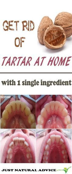 Get rid of the Tartar with a single Ingredient at Home - Health Beauty ABC natural beauty tips,beaut Natural Beauty Tips, Health And Beauty Tips, Health Tips, Healthy Beauty, Health Recipes, Health Benefits, Beauty Guide, Health Remedies, Home Remedies