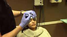 Dysport & Restylane Lyft Injection by Dr. Naderi to Forehead Wrinkles & ...