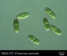 Closterium navicula